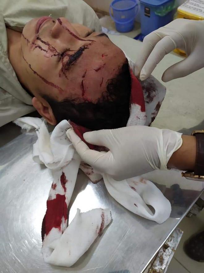 Đồng Nai: Kéo vào trạm kiểm lâm cướp xe, đánh trọng thương kiểm lâm viên - ảnh 1