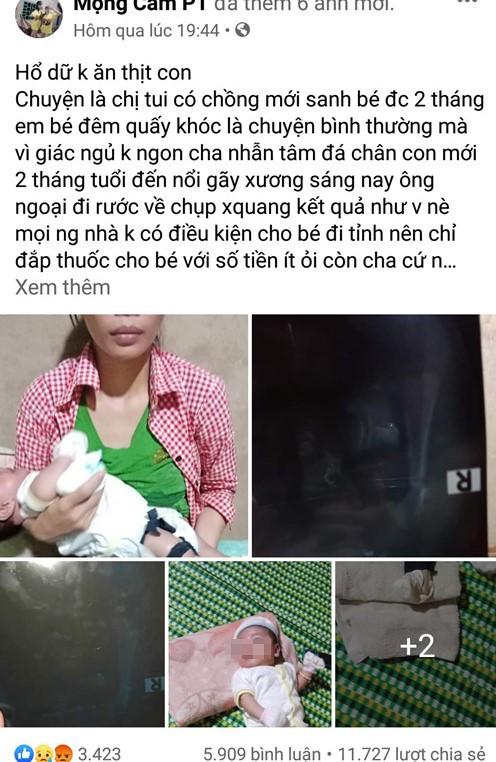 Phẫn nộ người cha nghi đánh con 2 tháng tuổi gãy chân - ảnh 1