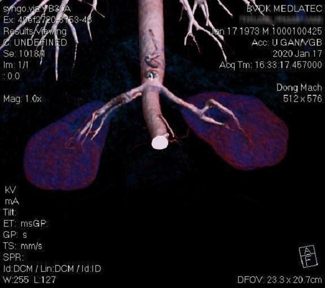 Ca chụp CT Gan tại Bệnh viện Đa khoa MEDLATEC. Ảnh: MEDLATEC