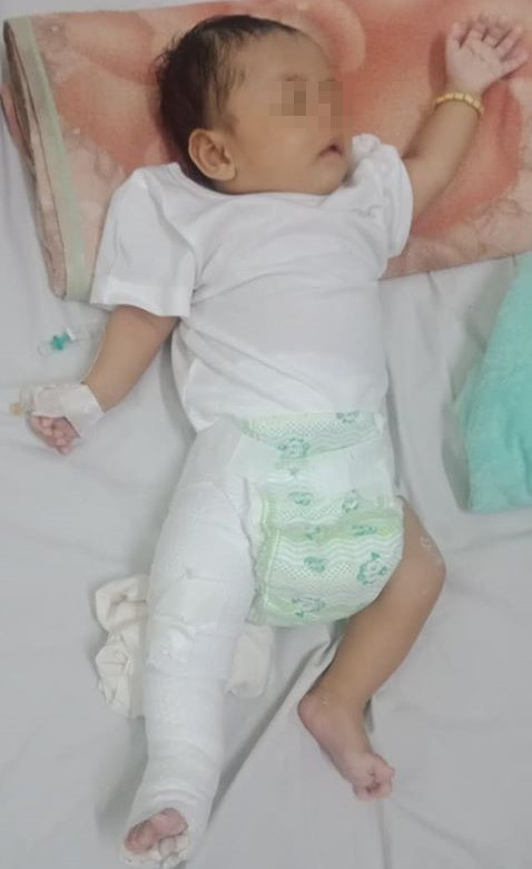 Phẫn nộ người cha nghi đánh con 2 tháng tuổi gãy chân - ảnh 2