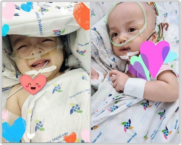 Hai chị em Trúc Nhi - Diệu Nhi đã cai máy thở, cười tươi khi được bố mẹ vào thăm-2
